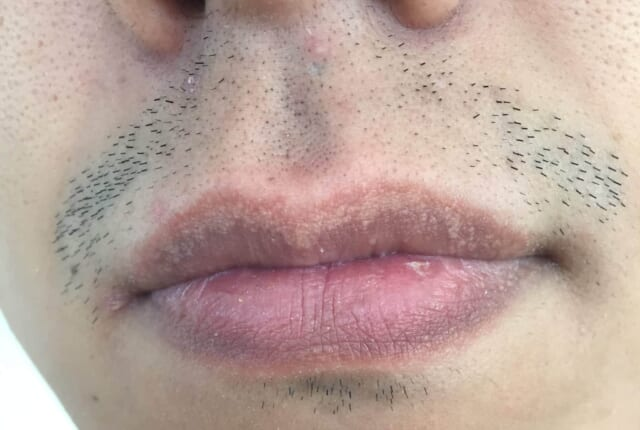ケノンで髭脱毛前の髭の濃さ