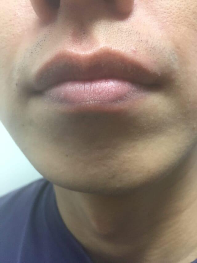 ケノンの髭脱毛効果|1年半後(約35回)の男性の経過写真