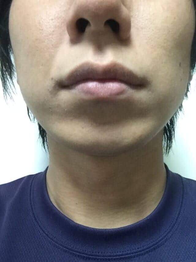 ケノンの髭脱毛効果|3年後(約45回)の男性の経過写真