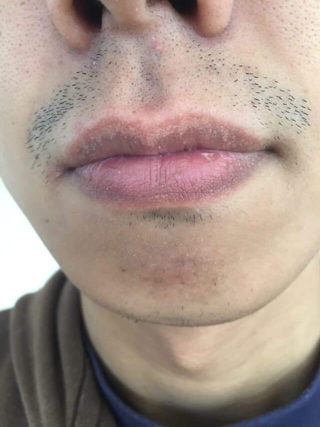 ケノンで髭脱毛前の写真(男性)