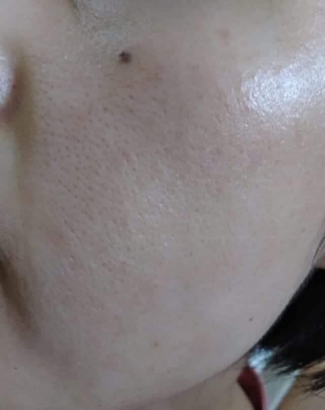 ケノンで顔脱毛前の頬の毛穴