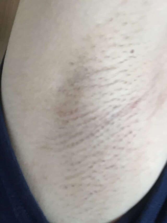 ケノン脇脱毛への口コミ写真「脱毛から3ヶ月後」