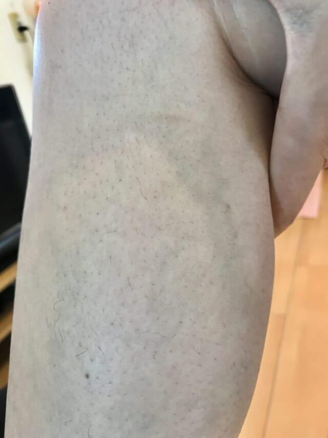 ケノンで足脱毛10回目の口コミ写真(みなさん) (2)