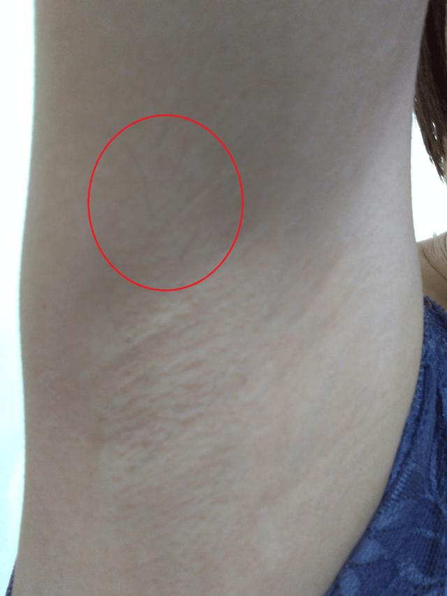 ケノン脇脱毛への口コミ写真「半年以上照射しなかったワキ」