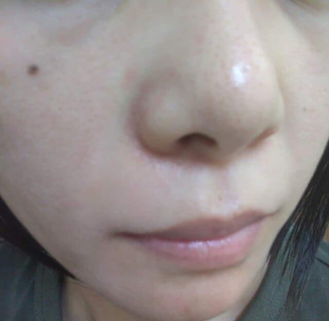 ケノンで顔脱後の写真2日目