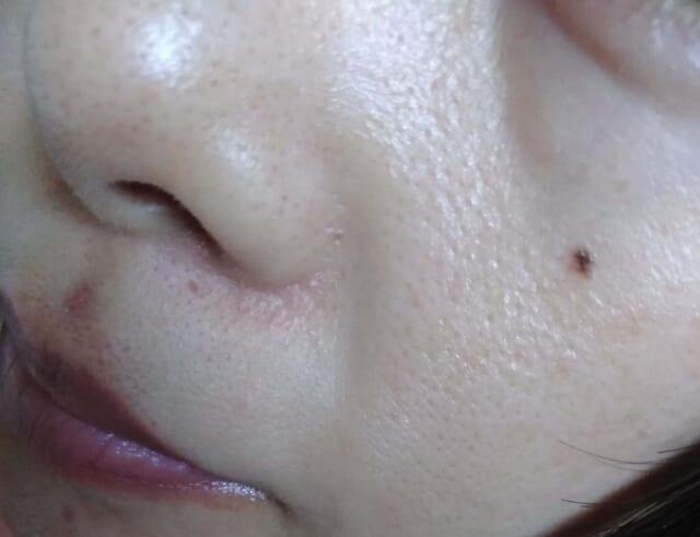 ケノンで顔脱毛前の鼻下写真