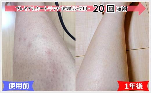 ケノン効果的な使い方(腕と足)