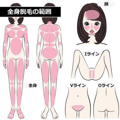 全身脱毛の範囲を表す画像