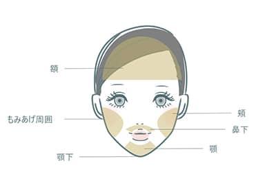 東京ディアークリニックの顔脱毛範囲