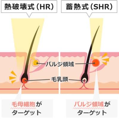 医療レーザー脱毛の熱破壊式と蓄熱式の違い
