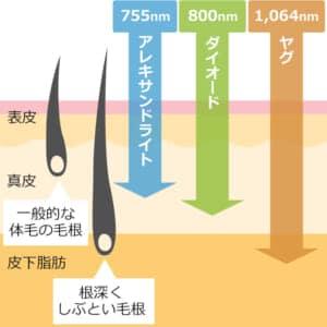 医療レーザー脱毛の波長種類