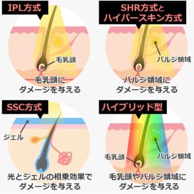 エステ光脱毛の種類と仕組みの違い