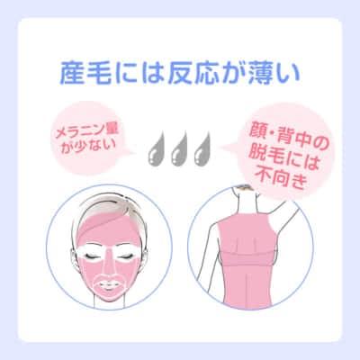顔・背中の産毛には脱毛効果が低い