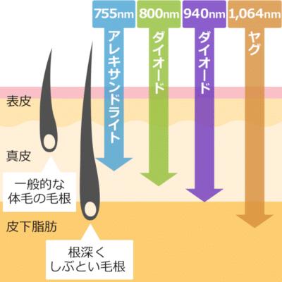 医療レーザー脱毛の波長種類と長さ