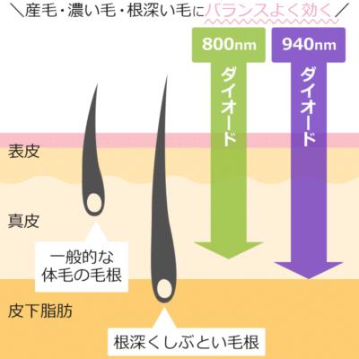 メディオスターの波長種類(ダイオード2種)