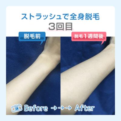 【3回目】脚や腕の比較的やわらかい毛が少し細くなる