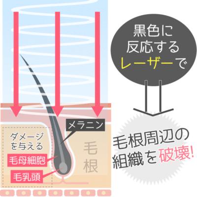 ジェントルYAG(ヤグ)レーザー脱毛の仕組み