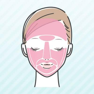ミセルクリニックの顔脱毛範囲