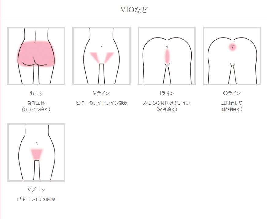 アイエスクリニック脱毛の範囲(VIO)