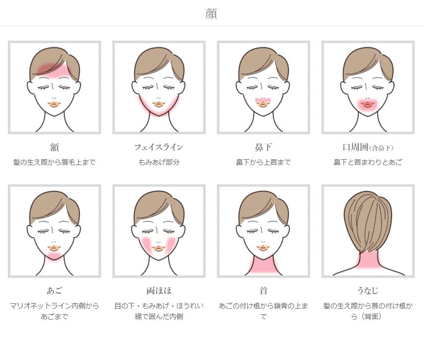 アイエスクリニック脱毛の範囲(顔)