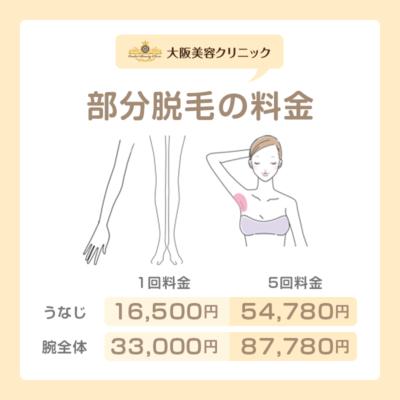 4.その他…腕、足、ワキなどの料金